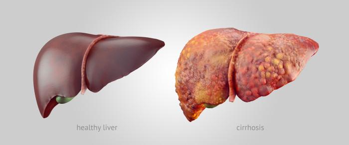ilustracja przedstawiająca porównanie chorej i zdrowej wątroby