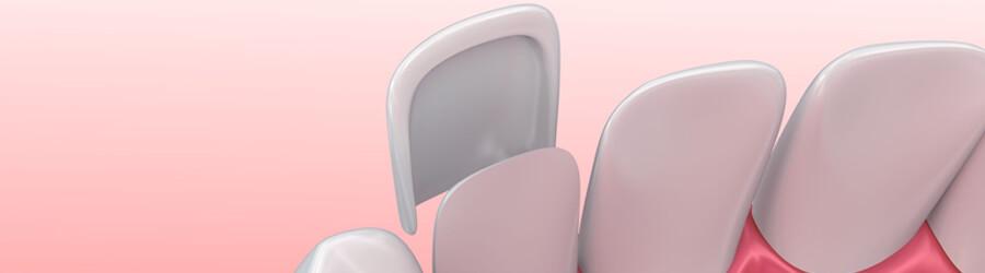 Zakładanie licówki - zęby